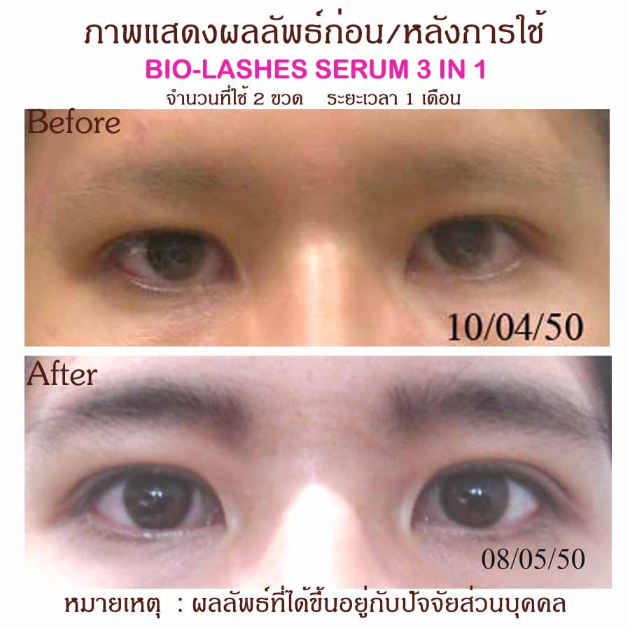 bio lashes serum รีวิว