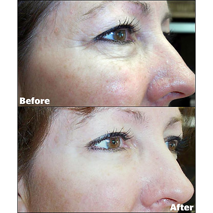 Jeunesse Instantly Ageless-6