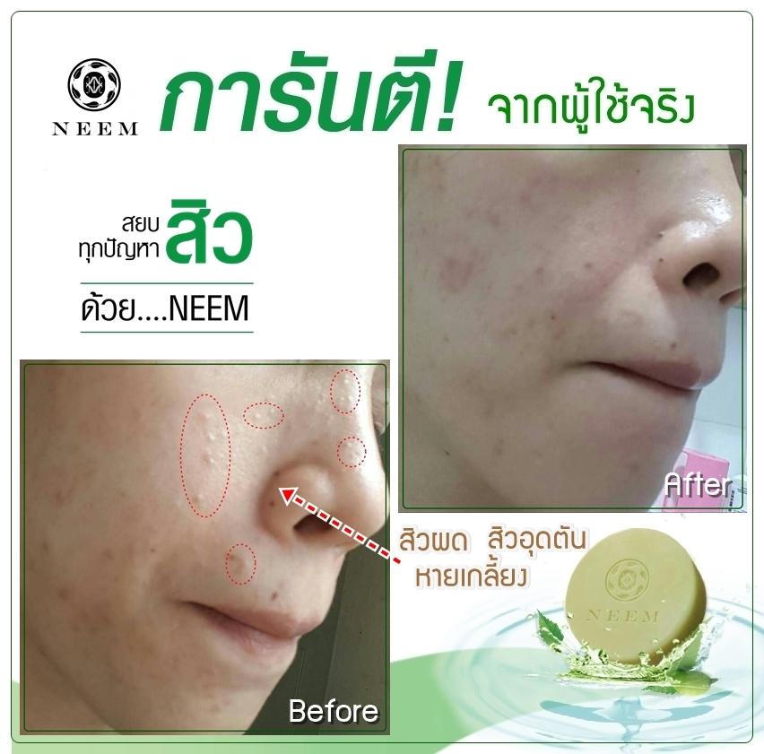 review neem soap fb customer